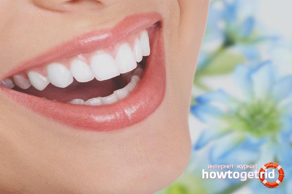 Отбеливание зубов запорожье цена