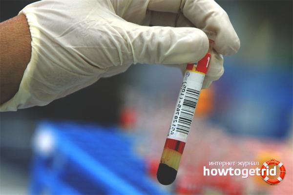 Как понизить мочевую кислоту в крови народными средствами