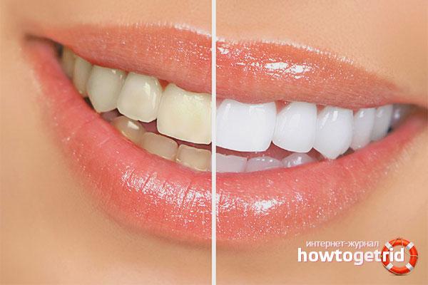Как избавиться от зубного камня