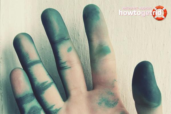 Отмываем руки от зеленки