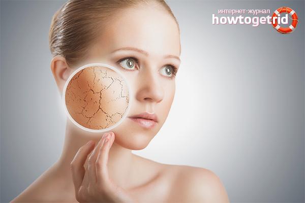Как избавиться от сухости кожи на лице