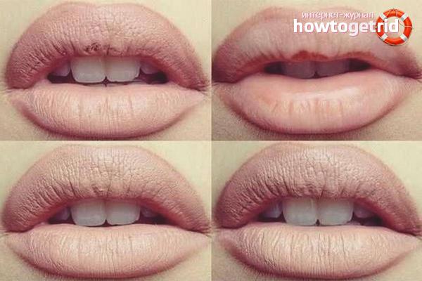 Как сделать так что бы губы были белыми 945