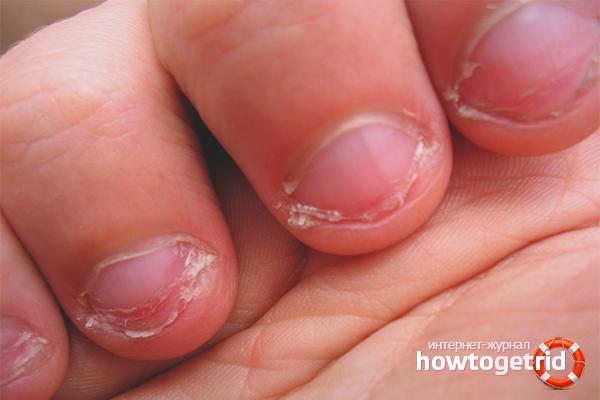 Погрызанные ногти ребенка