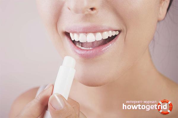 Профилактика трещин на губах