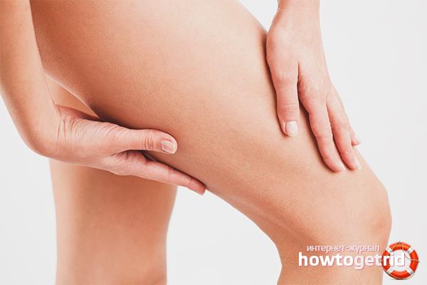 Как избавиться от дряблой кожи на ногах