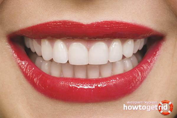 Как отбелить зубы без вреда эмали