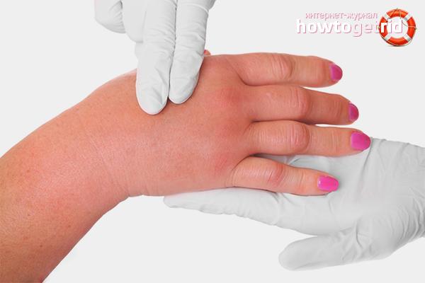Болят руки опухают что делать в домашних