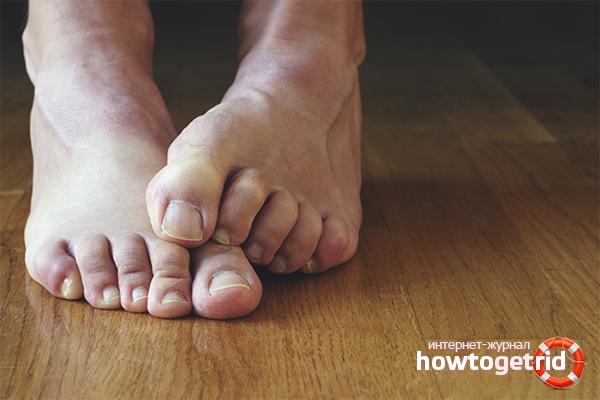 Как убрать косточку на ноге у большего пальца