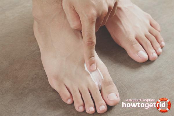 Лечебные крема и мази от косточки на большом пальце ноги
