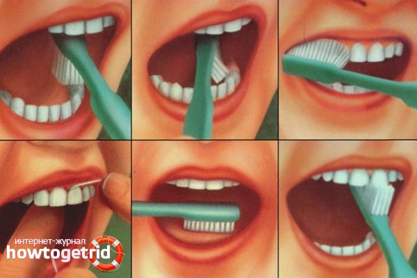 Технология чистки зубов