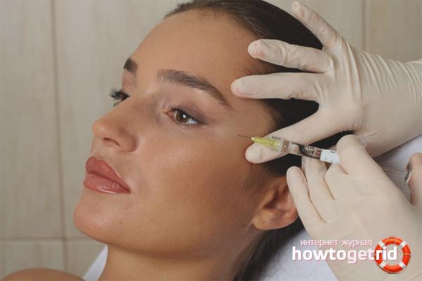 Какие препараты используются для мезотерапии глаз