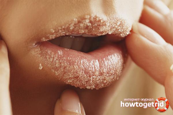 Как избавиться от сухости губ