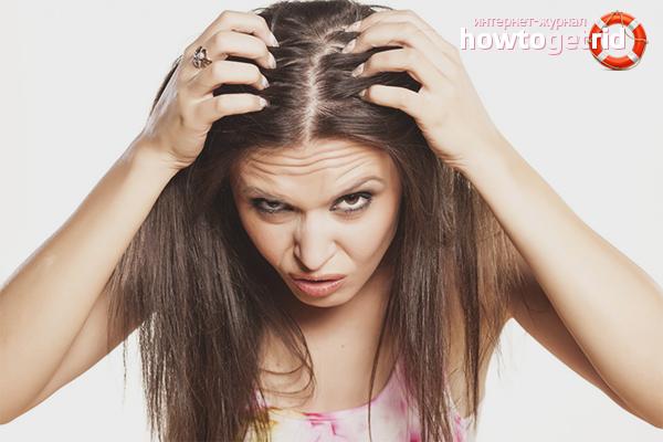 Как избавиться от псориаза на голове