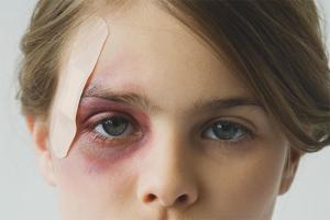 Как быстро снять отек с лица после удара