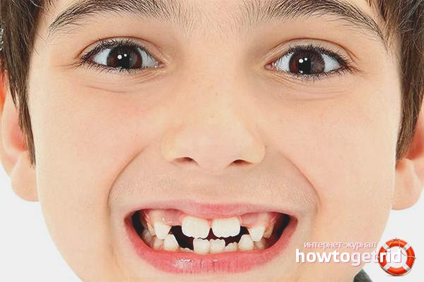 Как восстановить зубную эмаль у ребенка