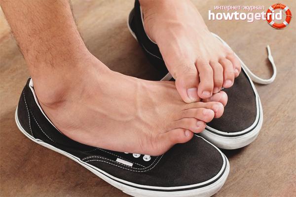Как избежать заражения грибком на ногах
