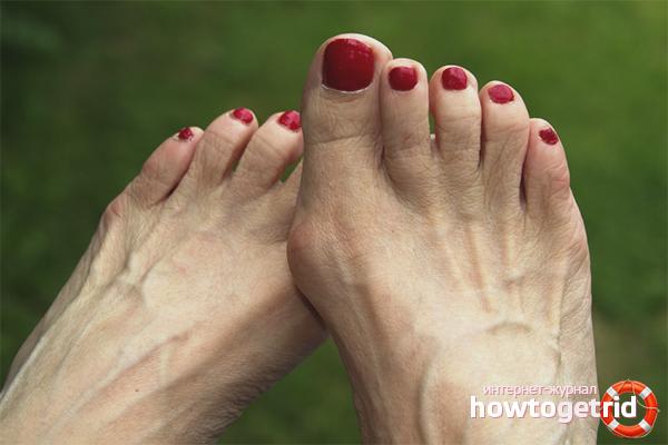 Основные причины роста косточки возле большого пальца ноги стадии деформации