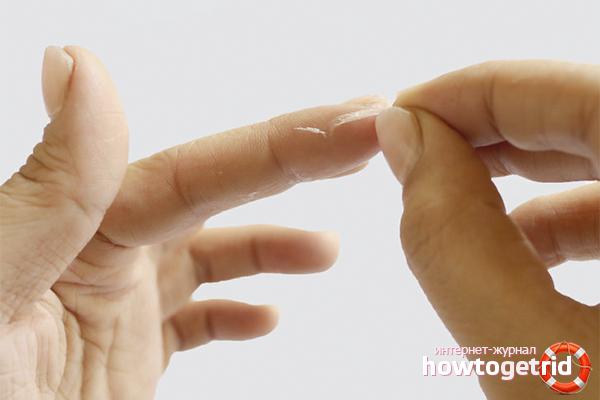 Как убрать суперклей с пальцев