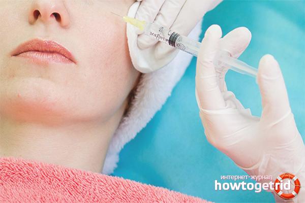 Салонные процедуры против купероза