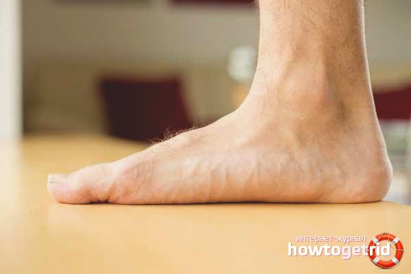 Как лечить плоскостопие