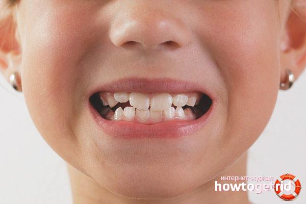 Как укрепить молочные зубы у ребенка