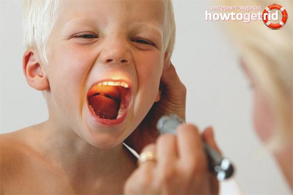 Как вылечить красное горло у ребенка