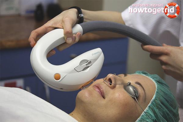 процедуры от пигментных пятен на лице