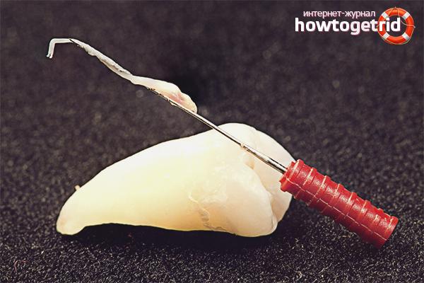Как убить нерв в зубе