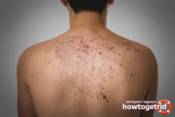 аллергия на пилинг как выглядит