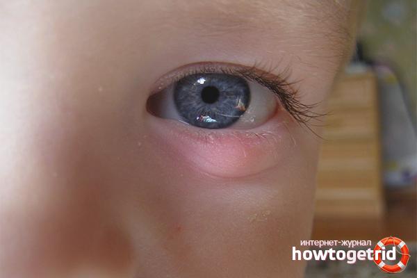 Как лечить ячмень на глазу дома: капли, мази