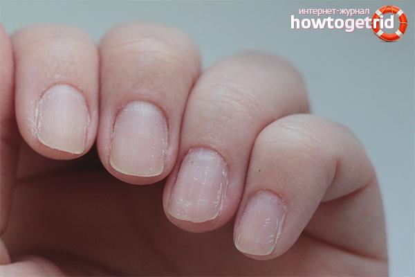 Почему слоятся и ломаются ногти? Причины и лечение