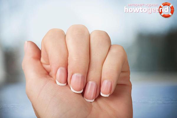 Заусенцы на пальцах