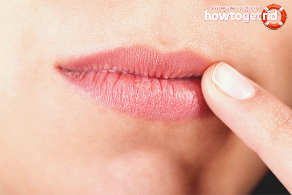 хейлит на губах лечение мазь