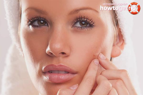 Прыщи на щеках у женщин: причины и лечение