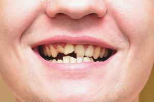 Что делать, если крошатся зубы