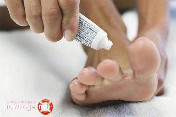 Медикаментозное лечение онихомикоза
