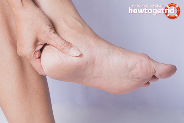 Как лечить ушиб пятки