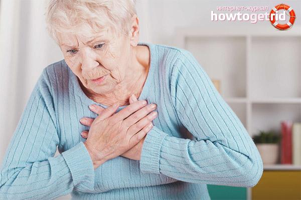 Первые признаки и симптомы инфаркта у женщин