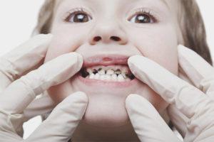 Черный налет на зубах у ребенка