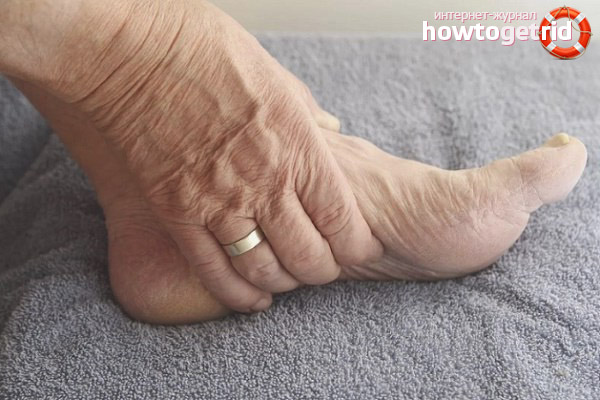 Лечение отеков ног у пожилых людей