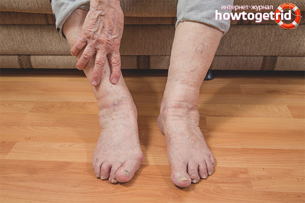 отеки ног причины и лечение при аллергии