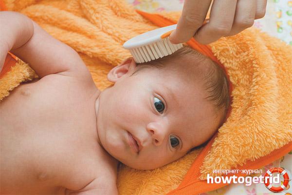 Почему выпадают волосы на голове у новорожденных
