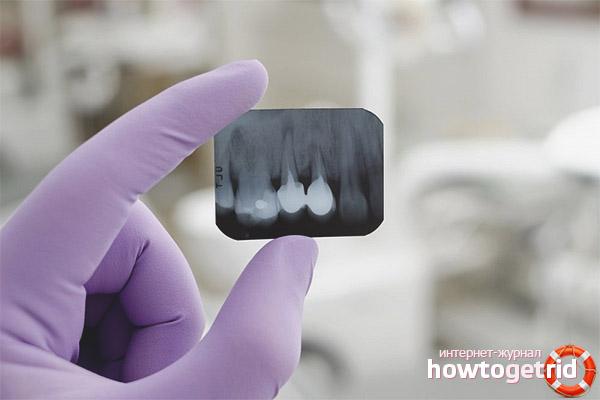 Можно ли делать рентген зубов при беременности