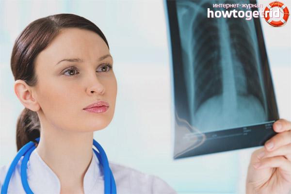 Рентген при грудном вскармливании