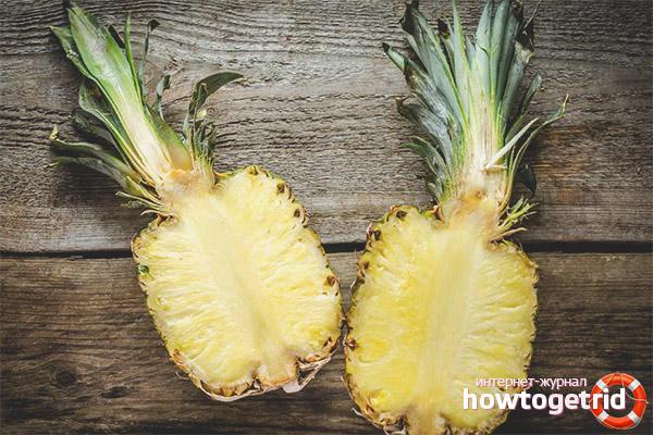 Правила употребления ананаса при сахарном диабете