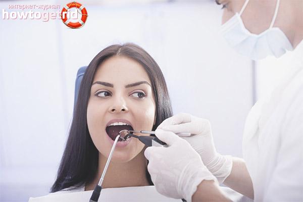 Вырывают ли зубы беременным 87