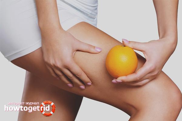 Как избавиться от апельсиновой корки