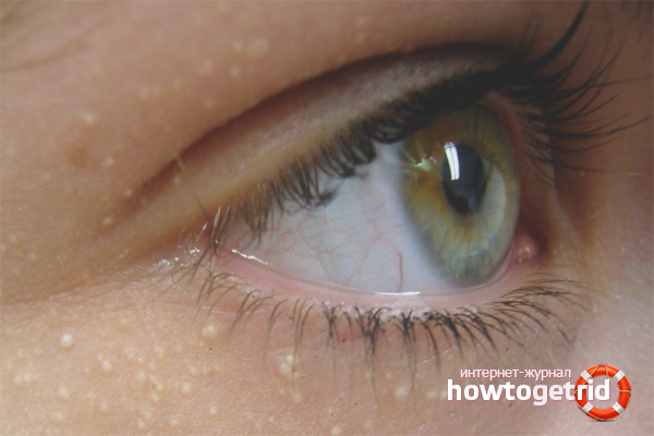 Как избавиться от жировиков под глазами