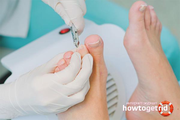 Хирургические методы удаления вросшего ногтя