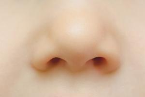 Как лечить болячки в носу в домашних условиях